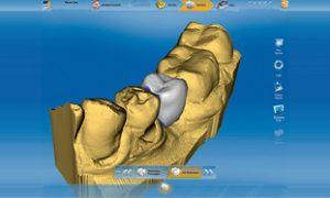 pi_integrated_implantology_crown35_in_cerec_311